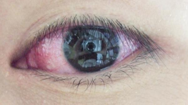 眼睛干痒是怎么回事,眼睛干痒是什么原因,眼睛又干又痒怎么回事