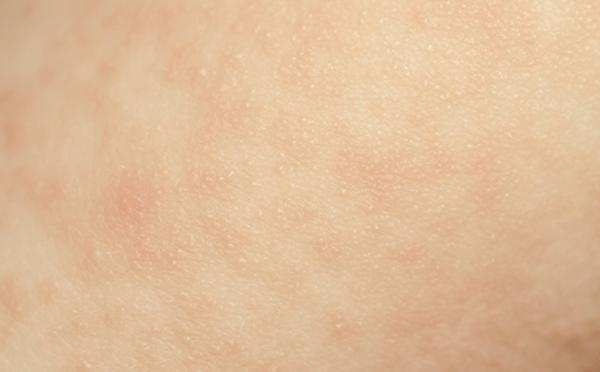 过敏性皮炎偏方