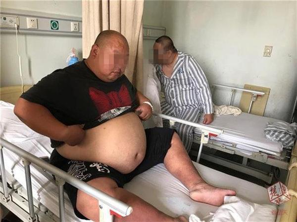 """""""柳州第一胖""""手术缩胃 科学减肥"""
