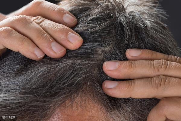 青少年满头白发有遗传史
