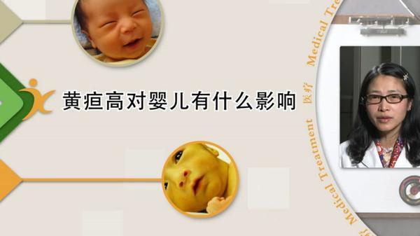 新生儿黄疸偏高有什么症状,新生儿黄疸偏高的危害