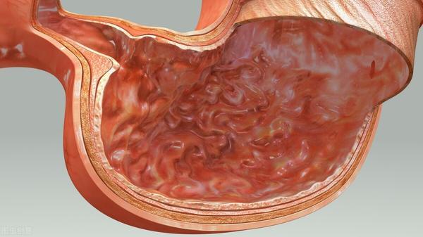 帮助胃黏膜修复五大法宝,给你的肠胃保护屏障