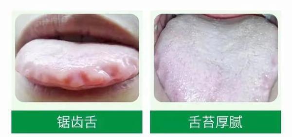 除湿胃苓汤的功效与作用