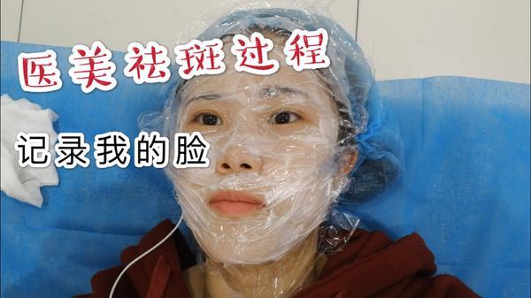激光祛斑多久可以洗脸,激光祛斑多久脱痂