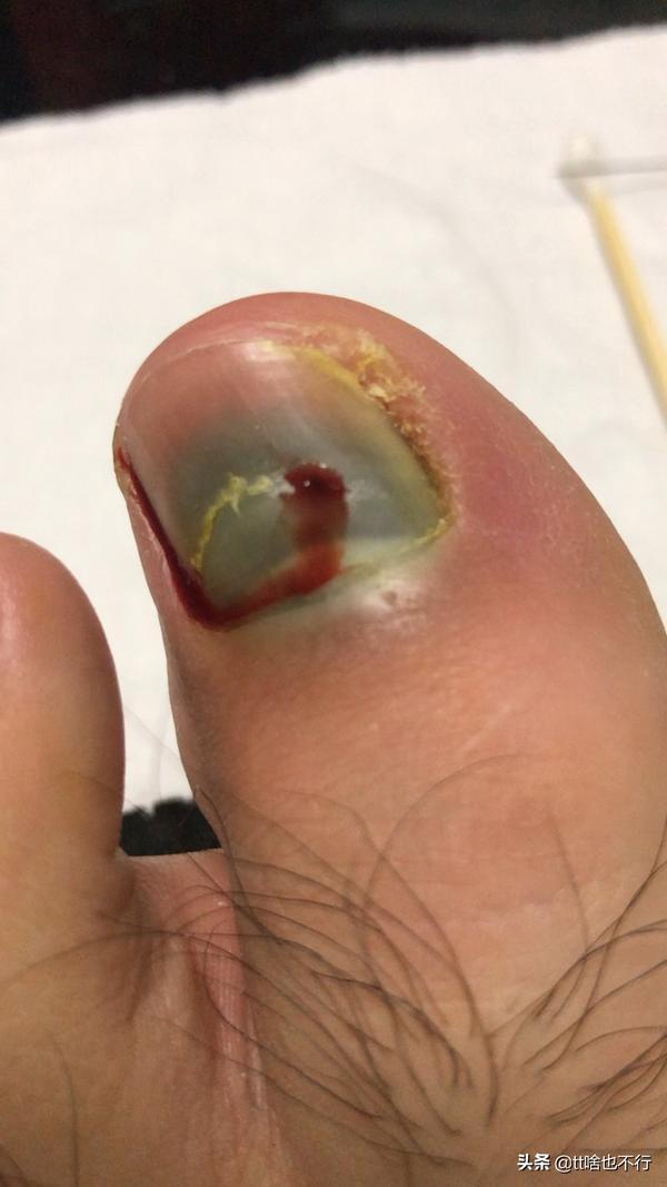 脚趾甲撞出血自己会好吗,脚趾淤血发黑多久会掉
