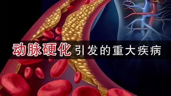 动脉硬化症状有哪些,动脉硬化会引起什么病