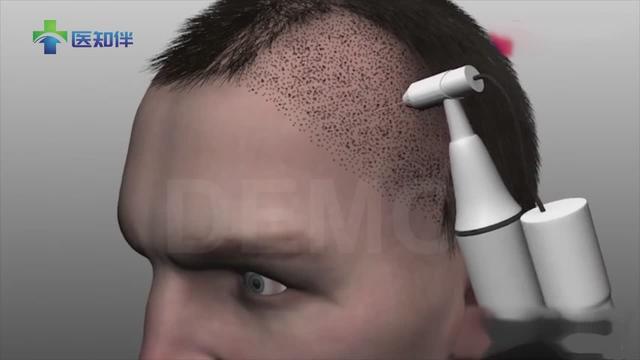 雍禾植发医院-植发价格透明、植发手术效果好