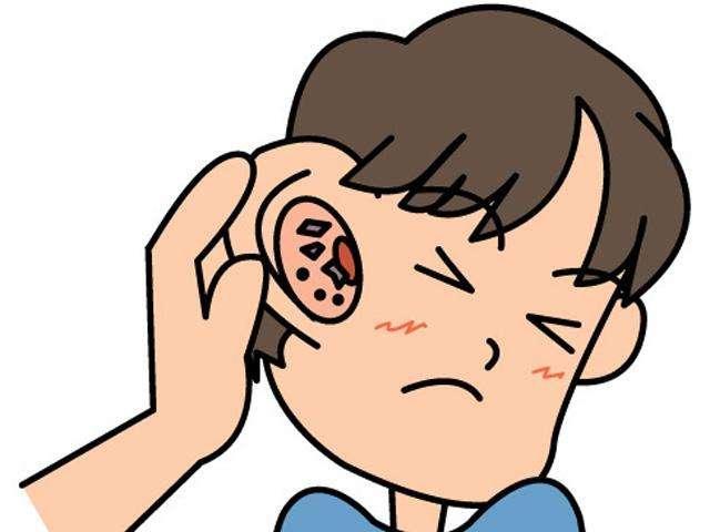 外耳道炎只需一招
