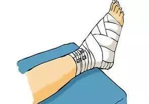 假肢矫形器图片