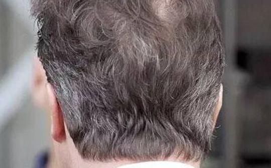 头上这3处长白发要小心 可能是疾病的信号 - 家庭医生在线