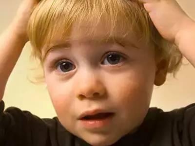 宝宝头上头皮屑很多 其实是摇篮帽_0-1岁护理__99健康网手机版