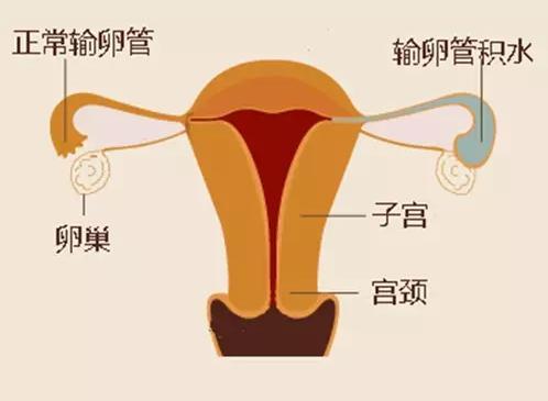 输卵管积液怎么办
