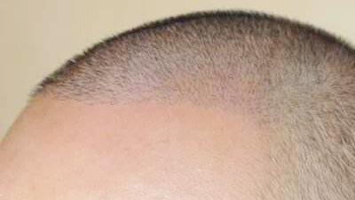 植发的方法有哪些?