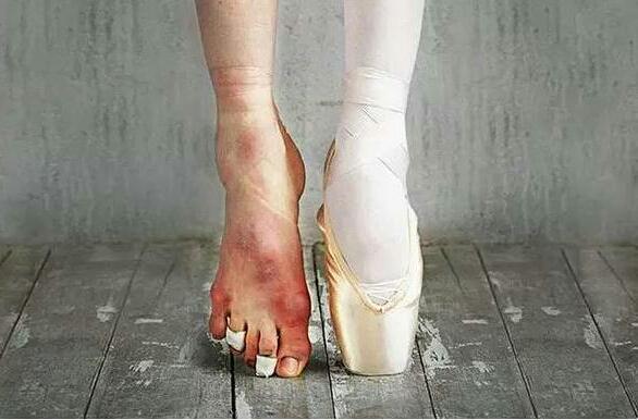 实拍芭蕾舞者的脚,美丽背后的代价是这样