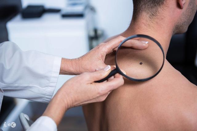 黑棘皮瘤的诊断标准,黑棘皮瘤,皮肤性病,39... -39健康网问答频道
