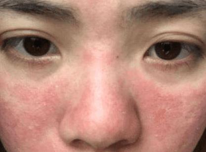 激素脸的正确修复方法