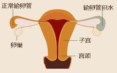 输卵管积液30mm算严重