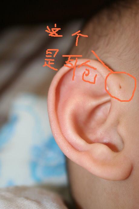 耳仓发炎严重图片
