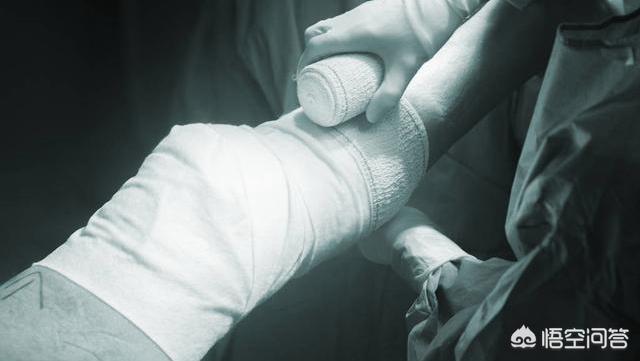 为什么骨折以前打个石膏现在去医院要打钢板让病人花钱受罪?