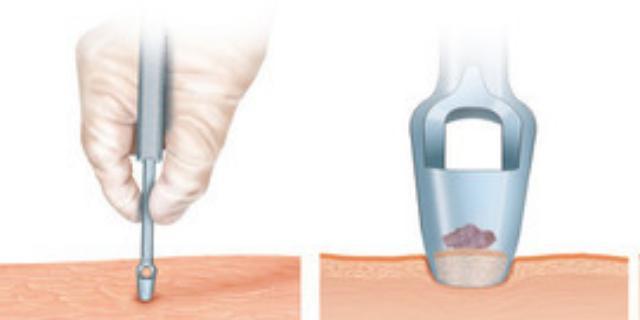 艾灸治疗腱鞘囊肿