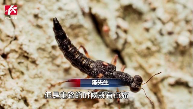 """隐翅虫""""咬人""""会致死?有毒素但不危及生命(图)-新... -手机搜狐"""