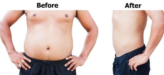 全身脂肪肉瘤症状图片