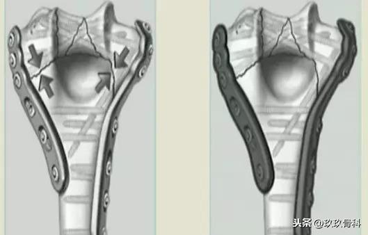 腰椎内固定融合术图片