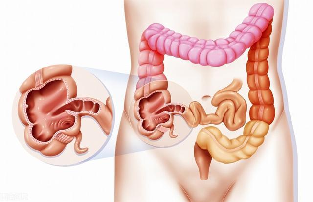 结肠癌是怎么引起的?除了饮食因素,还有这4大诱因不可轻视