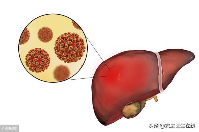 新生儿乙肝症状图片