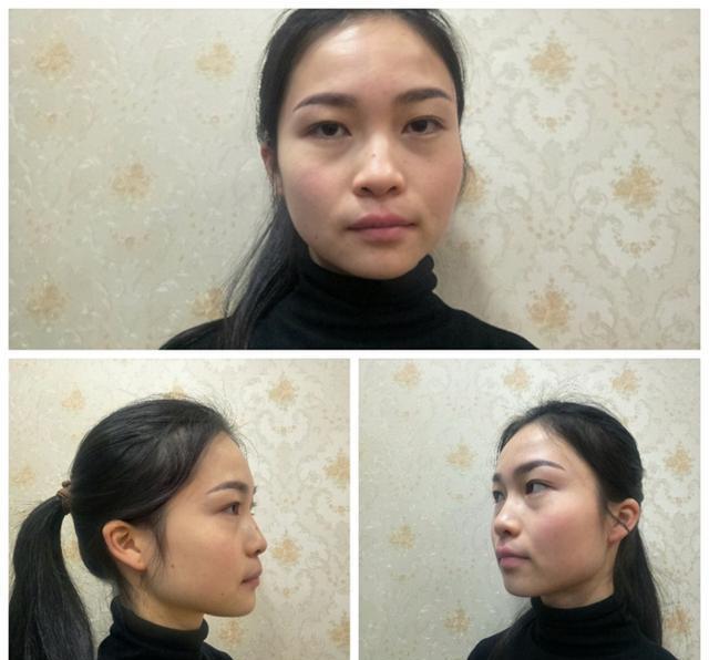 鼻综合真实恢复期图片,我这是修复的鼻子,这次做... _整容通app