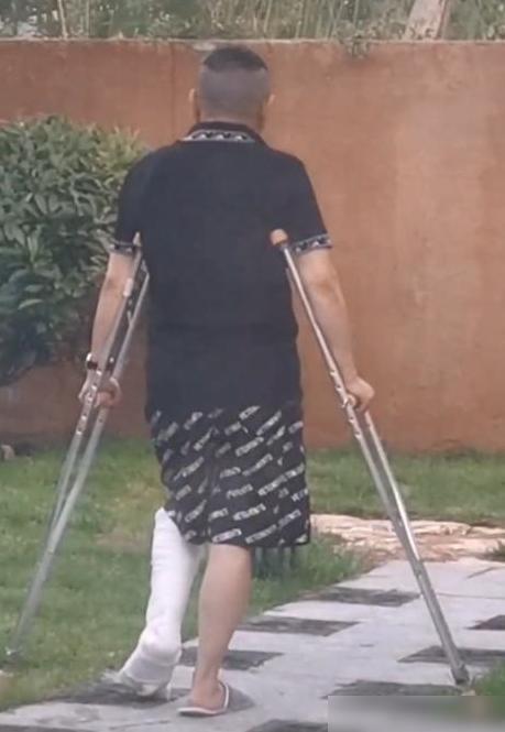 潘长江坐轮椅回应拍戏受伤:粉碎性骨折,但戏还得拍