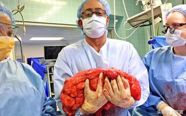 高分化脂肪肉瘤