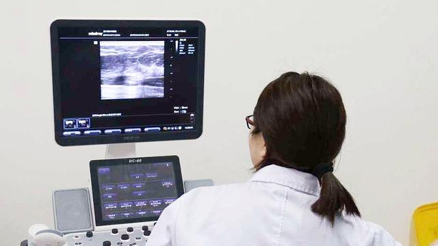 乳腺纖維瘤鈣化是癌嗎