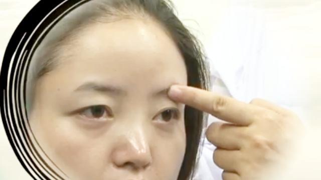 眼皮下垂,当心四种病