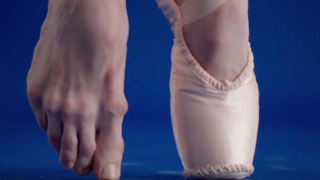 震惊!芭蕾舞者光鲜的背后 竟是一双千疮百孔的双脚