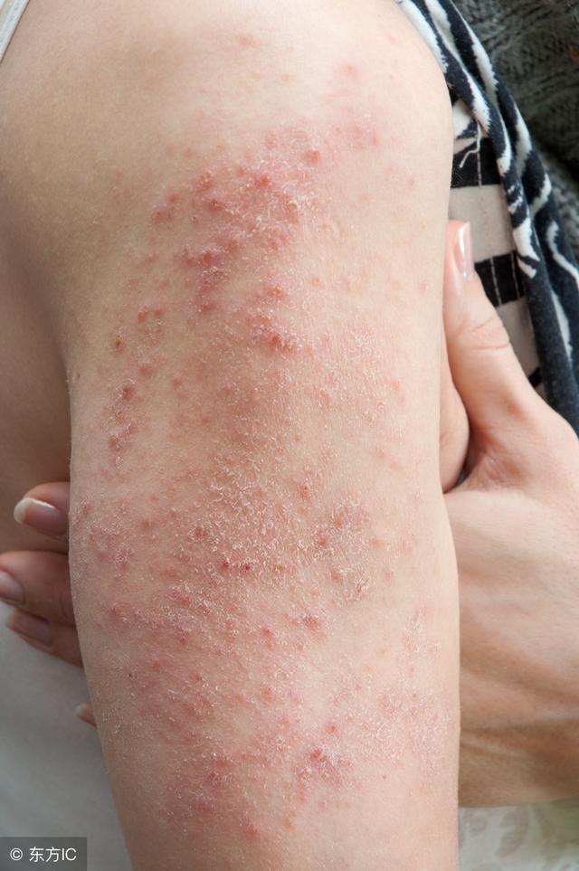 湿疹图片和症状图片