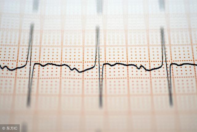 心电图怎么看图解(教你如何看懂心电图)