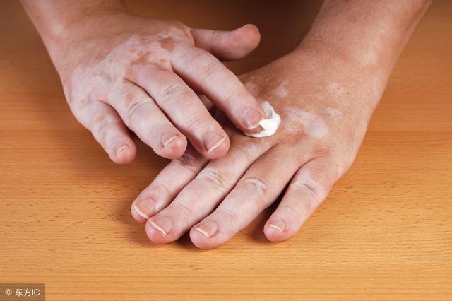 皮肤上白斑症状图片是怎样的-手机飞华健康网
