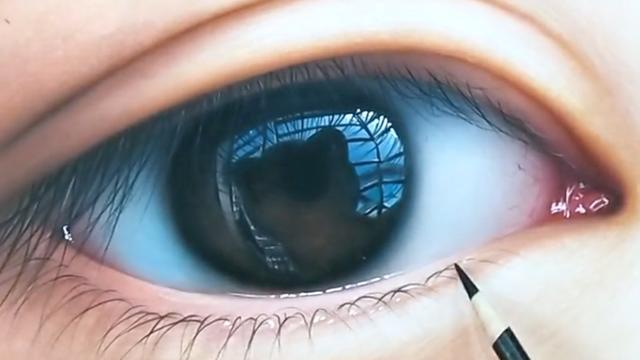 眼睫毛有水泡图片