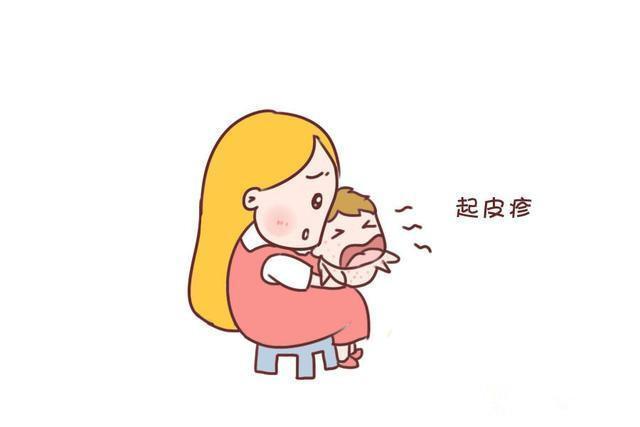 宝宝湿疹图片