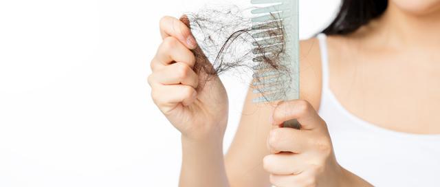 女性掉头发严重怎么治疗