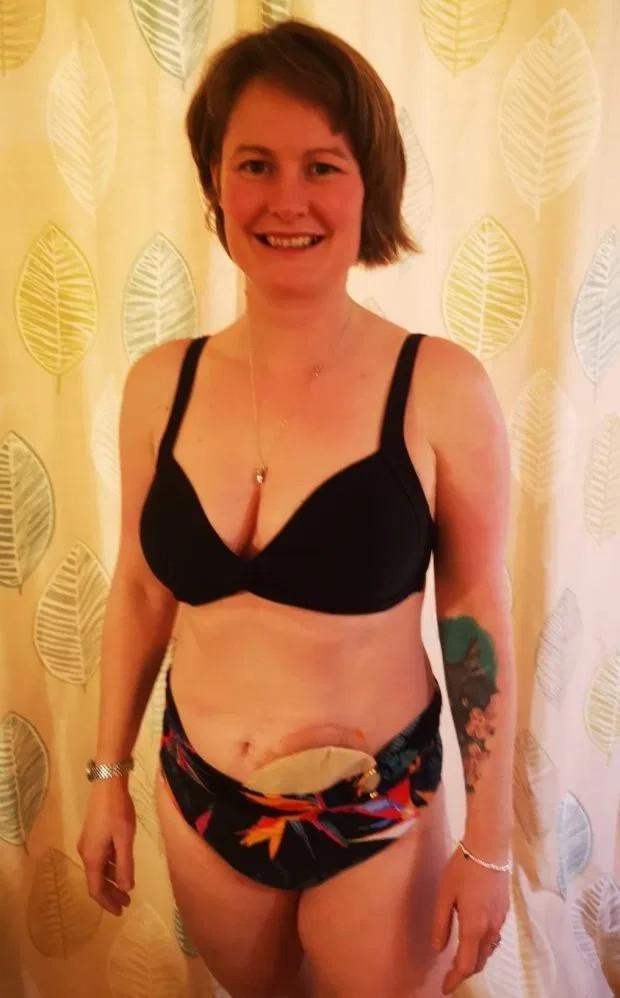 英国女子分娩时直肠撕裂,终身都需腹挂排泄袋