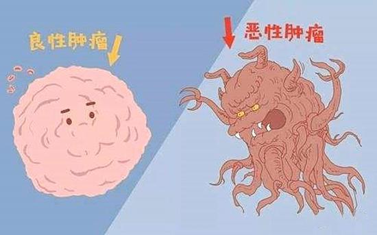 卵巢囊肿图片