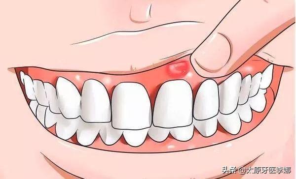 牙齿根尖炎的症状图片