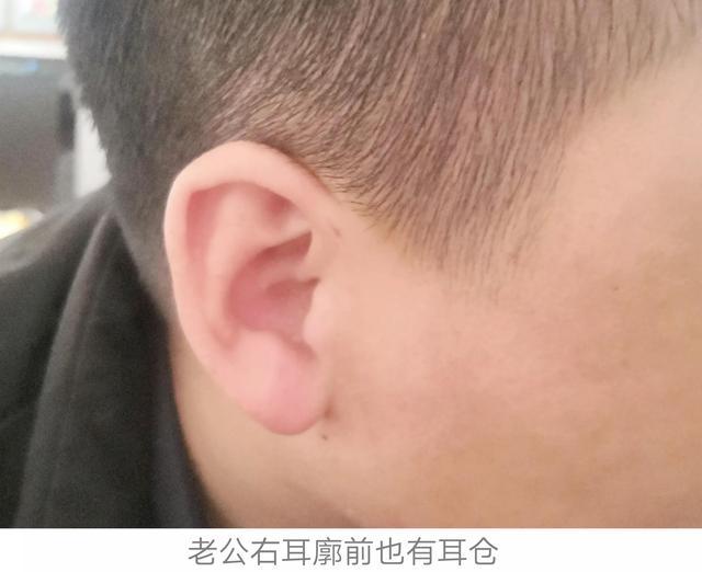 耳仓发炎图片