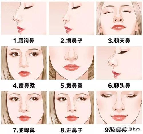 十种鼻型分类图蒜头鼻