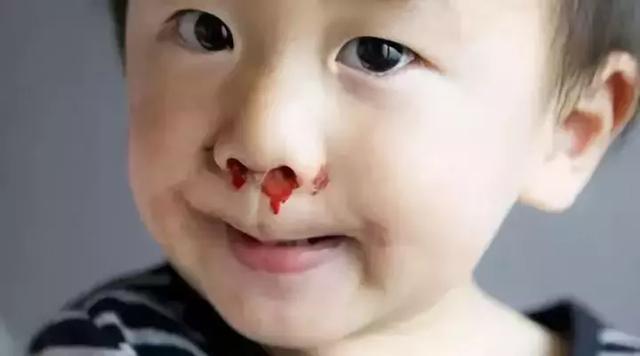 小孩鼻子骨折图片
