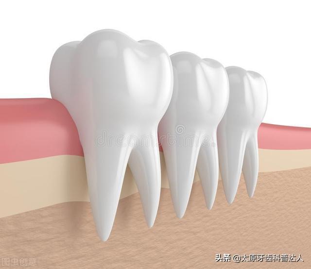 牙根尖囊肿症状图片