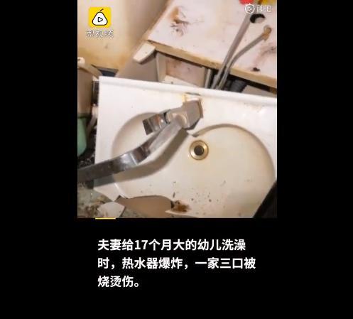 热水器爆炸,17月大幼儿与父母95%烧伤!你家里会不会也有炸弹?