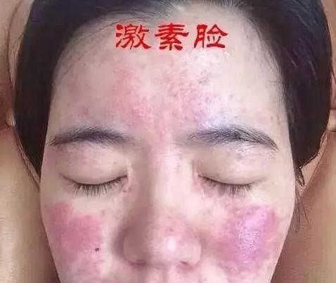 激素脸初期症状图片